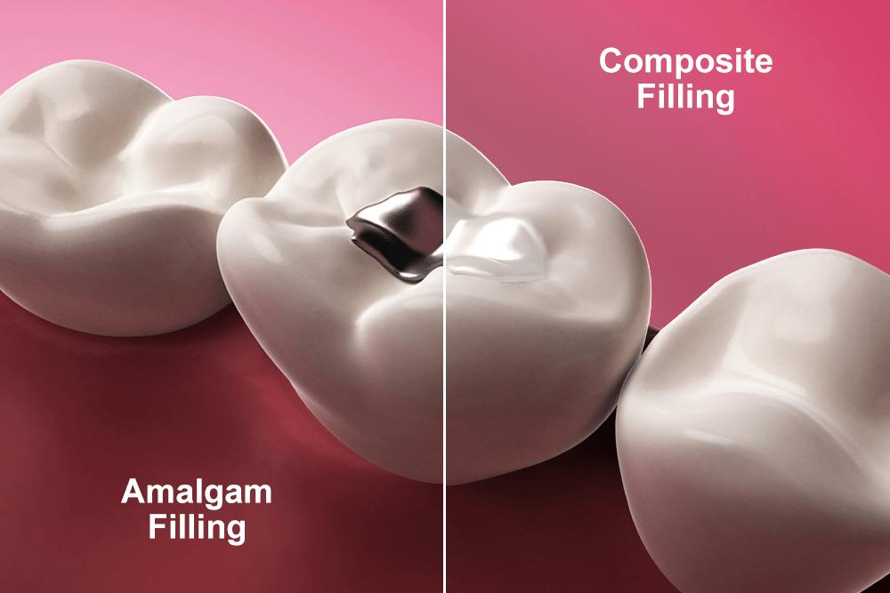 Fillings for Cavities (Amalgam vs composite fillings)