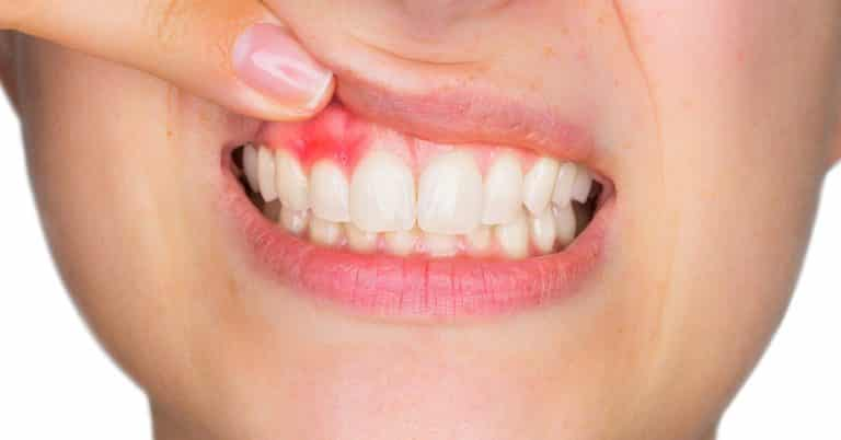 Periodontitis Disease Treatment