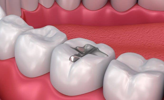 Should I replace Amalgam Fillings?