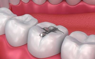 ¡Los empastes dentales también pueden parecerse a los dientes naturales!