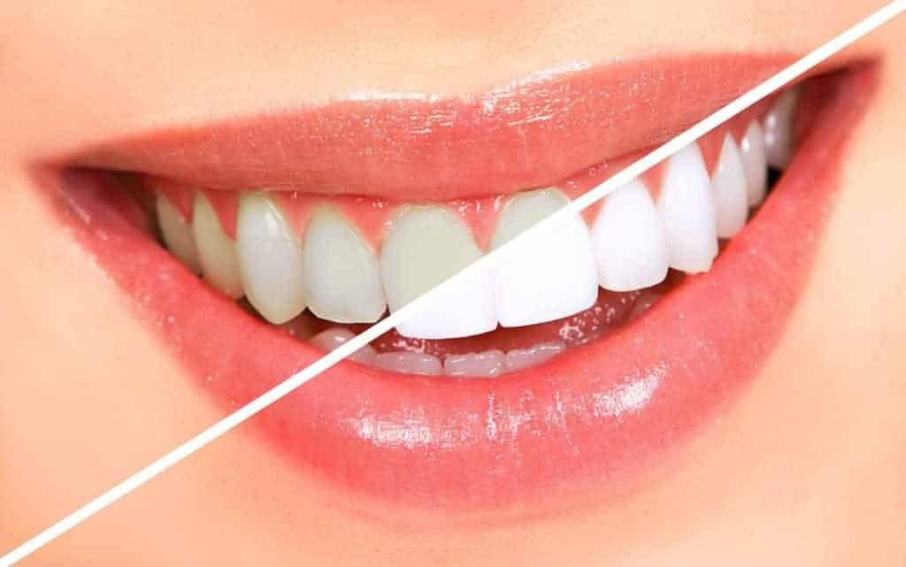 Regain Your Dazzling Smile With Teeth Whitening!